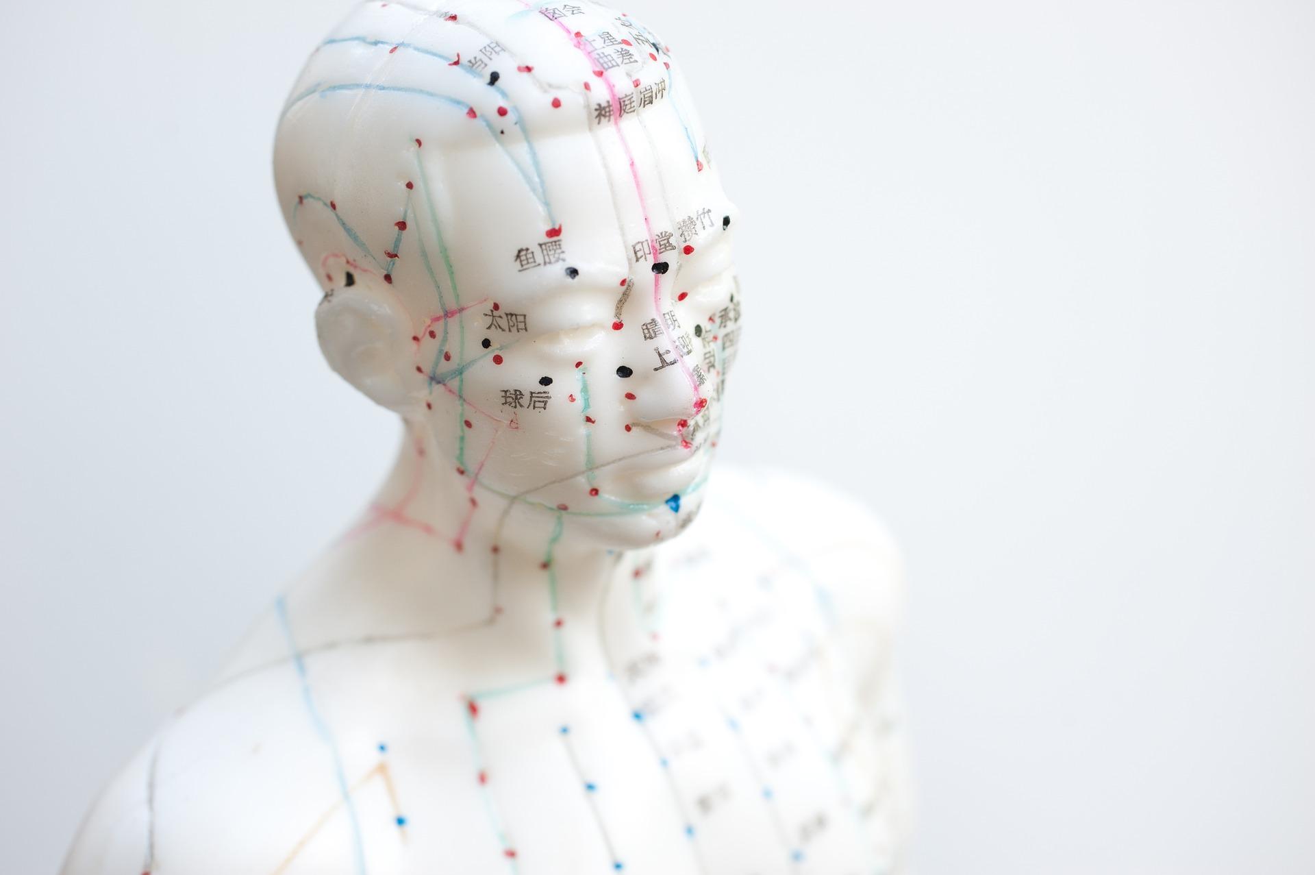 parálisis facial acupuntura